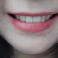 치아교정후기01 (2).jpg