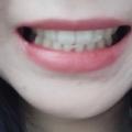 치아교정후기02 (2).jpg