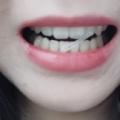 치아교정후기03 (3).jpg